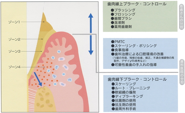 歯周治療の基本はプラーク・コントロール