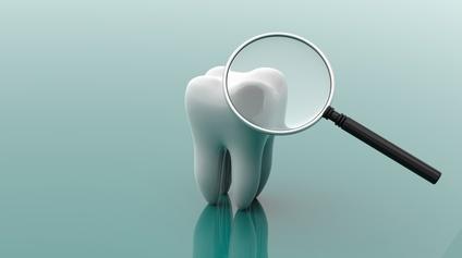 の 方法 ひく 歯茎 を 腫れ
