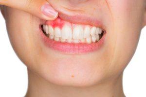 口腔内の観察
