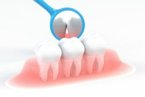 歯茎のメインテナンス