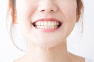 歯の色が変色